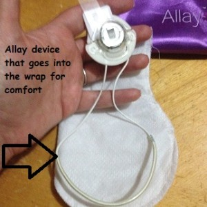 alleydevice